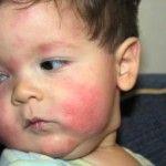 Çocuklarda Alerji Belirtileri ve Alerji Nedeni Gıdalar